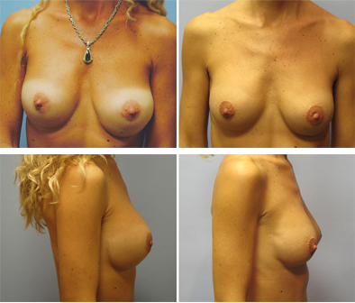 Correction Of Breast Implants Results