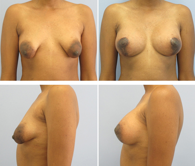 Before And After Breast Implants With Lift