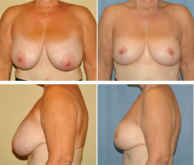 Before And After Breast Reduction Surgery