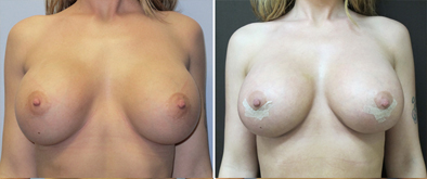 Before And After Breast Implant Correction
