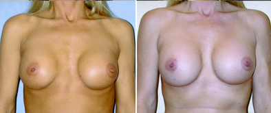 Breast Implant Correction Results