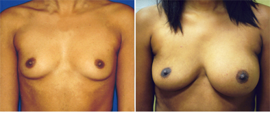 Correction Of Breast Implants Before And After