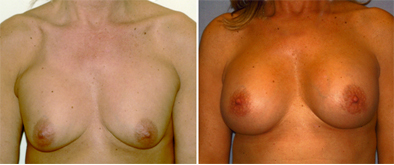 Before And After Correction Of Breast Implants