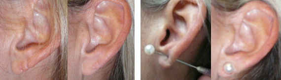 Before And After Earlobe Repair With Dr. Brandow