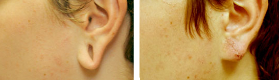 Earlobe Repair Before And After Surgery With Dr. Brandow