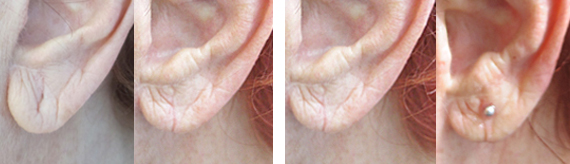 Earlobe Repair Before And After With Dr. Brandow