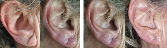 Before And After Earlobe Repair Surgery With Dr. Brandow