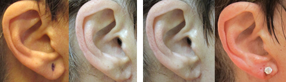 Before And After Earlobe Repair Surgery