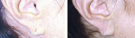 Before And After Earlobe Repair