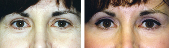 Eyelid Surgery Results With Dr. Brandow