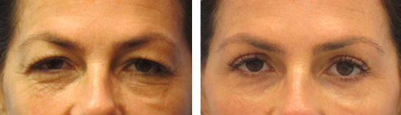 Before And After Blepharoplasty With Dr. Brandow