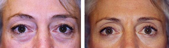 Blepharoplasty Results With Dr. Brandow