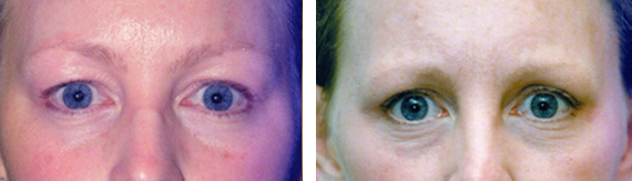 Before And After Eyelid Surgery With Dr. Brandow