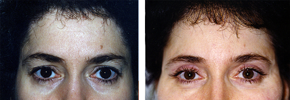 Before And After Forehead Lift Surgery