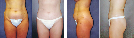 Before And After Liposuction With Dr. Brandow