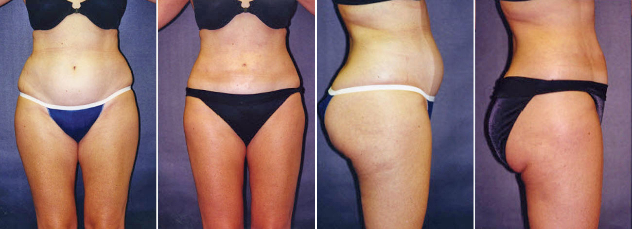 Liposuction Surgery Results