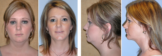 Neck Liposuction Results
