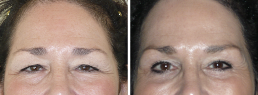 Before & After Blepharoplasty with Dr. Kirk Brandow