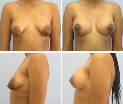 Tubular Breast Syndrome Before And After