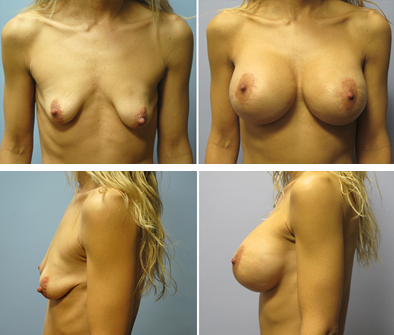 Before And After Tubular Breast Syndrome