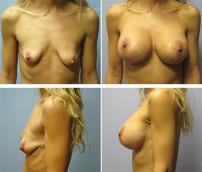 Breast Implant Surgery With Lift Before And After