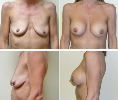 Breast Implants And Breast Lift Results