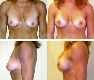Breast Implants And Breast Lift Before And After