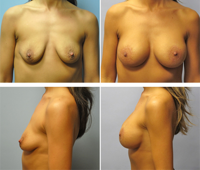 Breast Implants With Lift Before And After