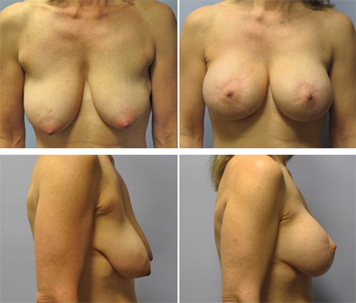 Breast Implants With Lift Results
