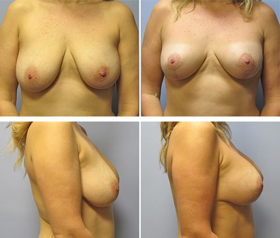 Before And After Breast Implant Surgery With Lift