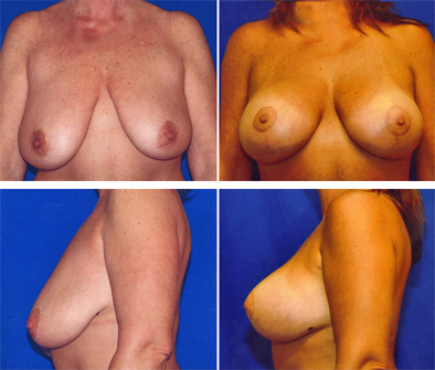 Breast Augmentation With Lift Before And After