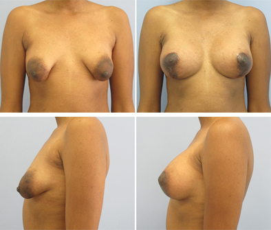 Breast Implant Surgery With Lift Results