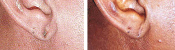 Earlobe Repair Surgery Before And After