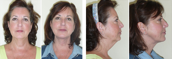 Before And After Boomer Lift With Dr. Brandow
