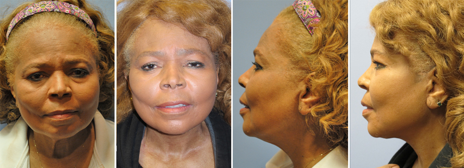 Face Lift Surgery With Dr. Brandow Before And After