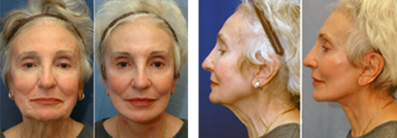 Before And After Face Lift Surgery With Dr. Brandow