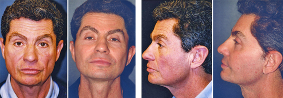 Male Facelift Results