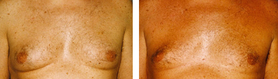 Male Breast Reduction Results
