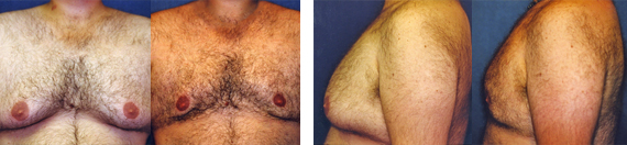 Before And After Male Body Contouring