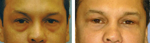Before And After Male Facial Surgery