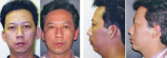 Male Facial Surgery Before And After