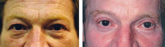Before And After Male Blepharoplasty