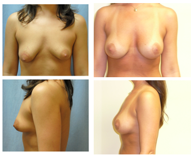 Before And After Breast Implants And Breast Lift
