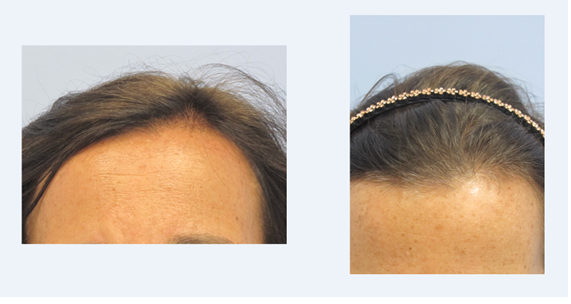 Before And After Hair Restoration With PRP