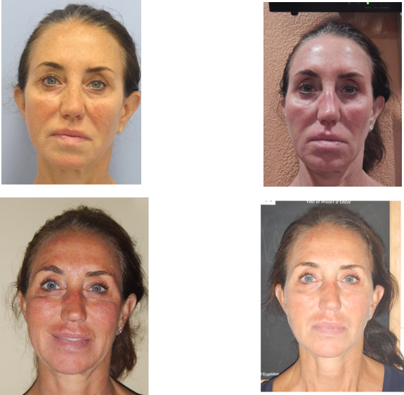Microneedling With PRP Results