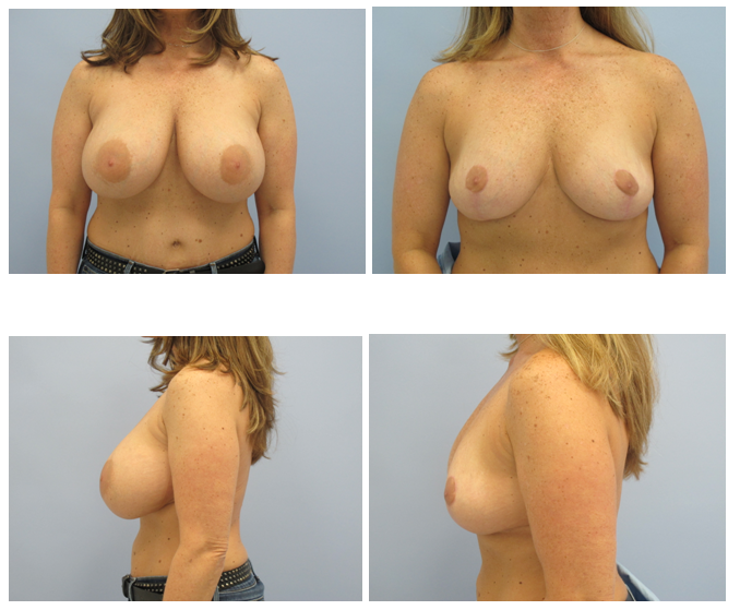 Breast Implant Removal And Lift Before And After
