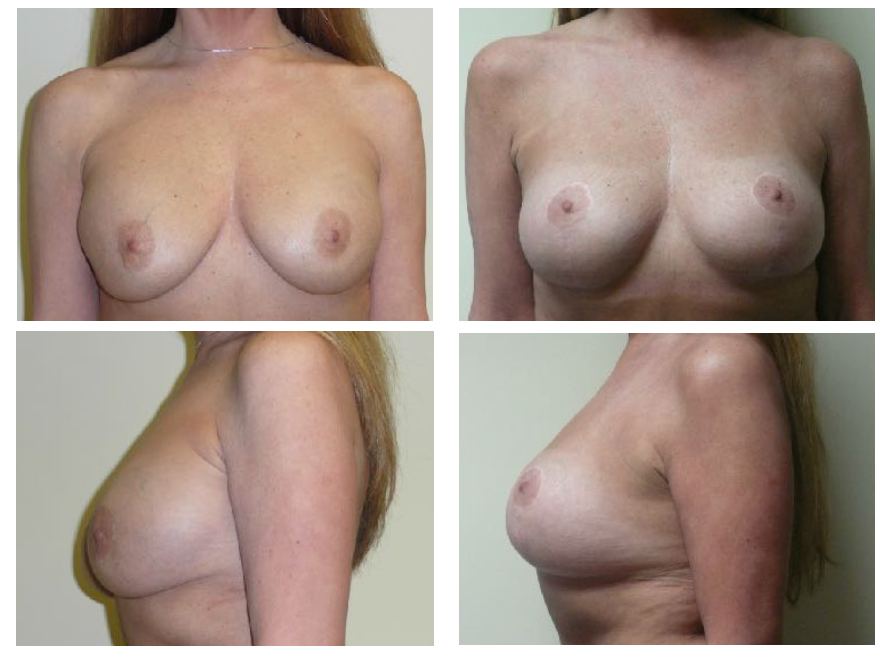Breast Implant Correction Before And After