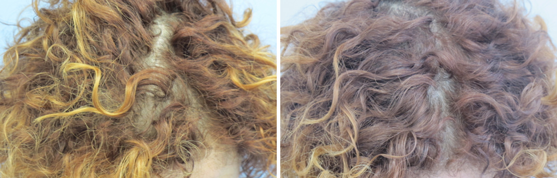 Before And After Hair Replacement With PRP