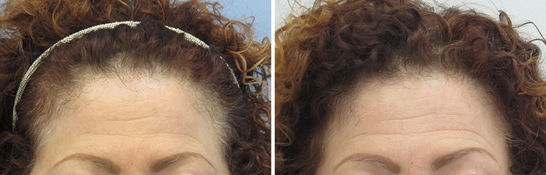 Before & After Hair Replacement With PRP