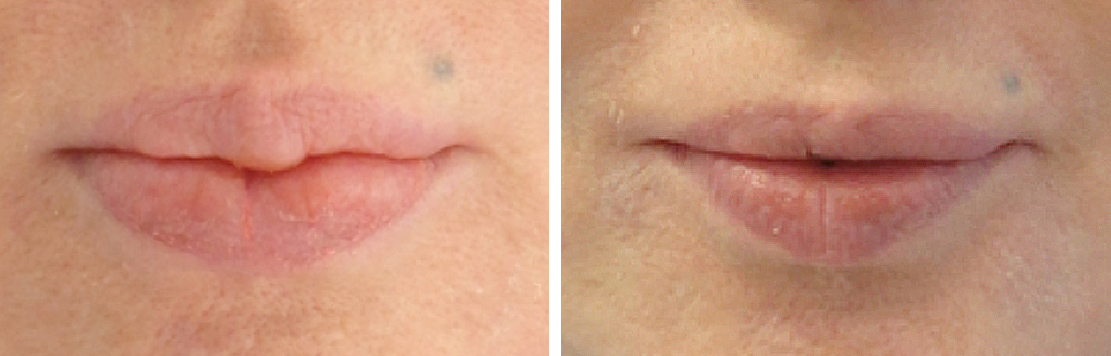 Lip Reduction Before And After